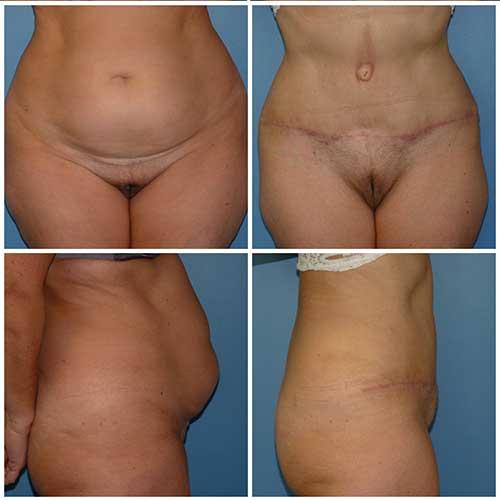 docteur robert zerbib chirurgie plastique chirurgien esthetique paris 16 75116 abdominoplastie plastie abdominale 1