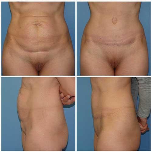 docteur robert zerbib chirurgie plastique chirurgien esthetique paris 16 75116 abdominoplastie plastie abdominale 4