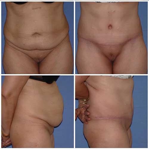 docteur robert zerbib chirurgie plastique chirurgien esthetique paris 16 75116 abdominoplastie plastie abdominale 5