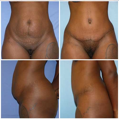 docteur robert zerbib chirurgie plastique chirurgien esthetique paris 16 75116 abdominoplastie plastie abdominale 6