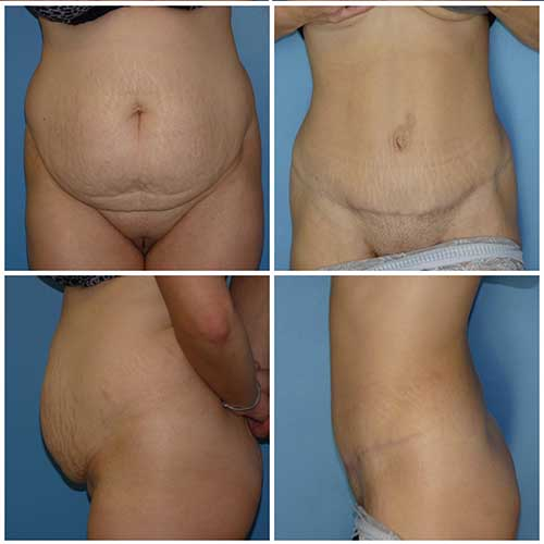 docteur robert zerbib chirurgie plastique chirurgien esthetique paris 16 75116 abdominoplastie plastie abdominale 7