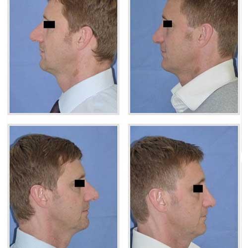 docteur robert zerbib chirurgie plastique chirurgien esthetique paris 16 75116 rhinoplastie esthetique chirurgie du nez 7