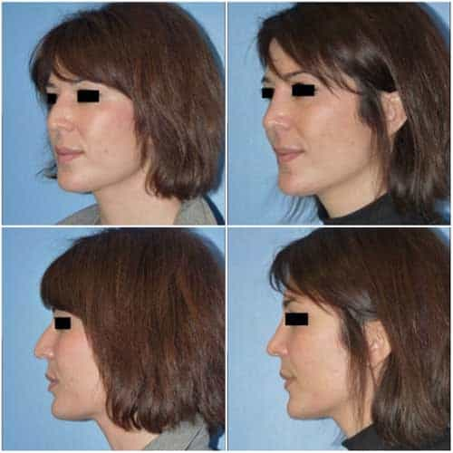 docteur robert zerbib chirurgie plastique chirurgien esthetique paris 16 75116 rhinoplastie esthetique chirurgie du nez paris 16 10
