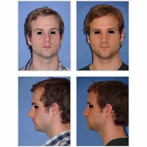 docteur robert zerbib chirurgie plastique chirurgien esthetique paris 16 75116 rhinoplastie esthetique chirurgie du nez paris 16 12