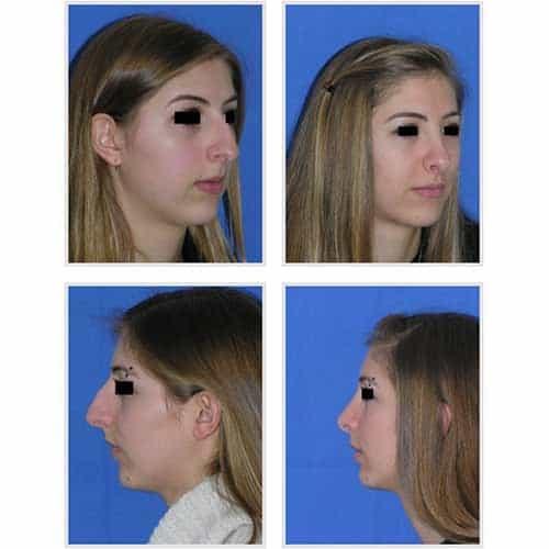 docteur robert zerbib chirurgie plastique chirurgien esthetique paris 16 75116 rhinoplastie esthetique chirurgie du nez paris 16 13