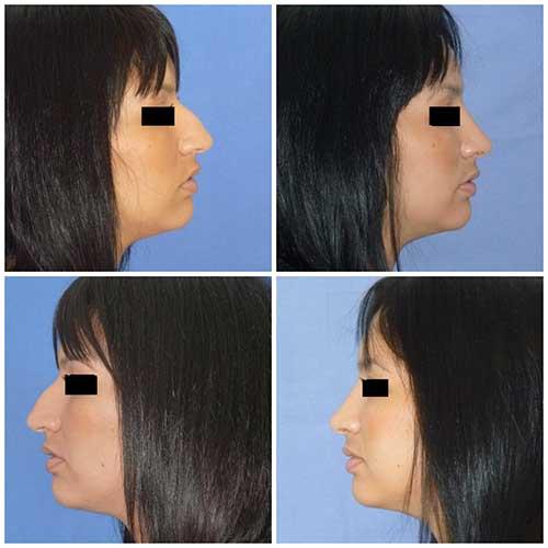docteur robert zerbib chirurgie plastique chirurgien esthetique paris 16 75116 rhinoplastie esthetique chirurgie du nez paris 16 3