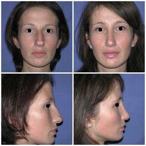 docteur robert zerbib chirurgie plastique chirurgien esthetique paris 16 75116 rhinoplastie esthetique chirurgie du nez paris 16 6