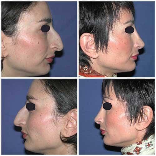 docteur robert zerbib chirurgie plastique chirurgien esthetique paris 16 75116 rhinoplastie esthetique chirurgie du nez paris 16 7