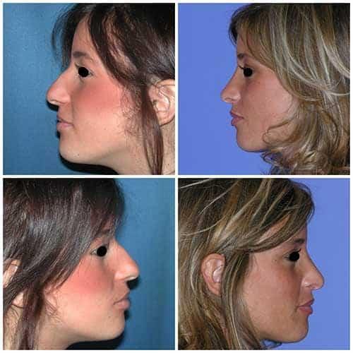 docteur robert zerbib chirurgie plastique chirurgien esthetique paris 16 75116 rhinoplastie esthetique chirurgie du nez paris 16 9
