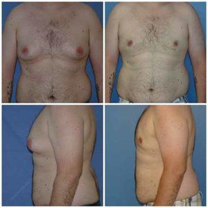 docteur zerbib chirurgien esthetique gynecomastie 75116