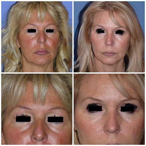 docteur robert zerbib chirurgie plastique chirurgien esthetique paris 16 75116 blepharoplastie chirurgie des paupieres chirurgie des yeux operation des yeux regard 3