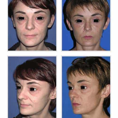 docteur robert zerbib chirurgie plastique chirurgien esthetique paris 16 75116 blepharoplastie chirurgie des paupieres chirurgie des yeux operation des yeux regard 5
