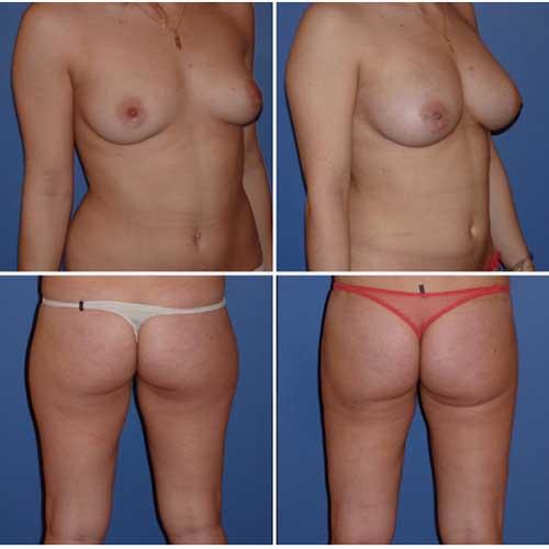 docteur robert zerbib chirurgie plastique chirurgien esthetique paris 16 75116 chirurgie esthetique des seins lipofilling mammaire 4