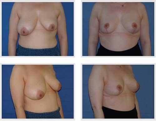 docteur robert zerbib chirurgie plastique chirurgien esthetique paris 16 75116 chirurgie esthetique des seins reduction mammaire pour hypertrophie mammaire plastie mammaire de reduction 2