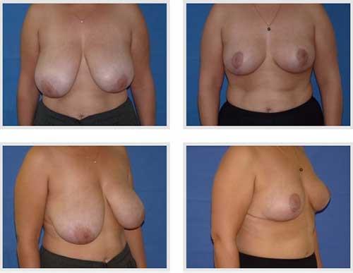 docteur robert zerbib chirurgie plastique chirurgien esthetique paris 16 75116 chirurgie esthetique des seins reduction mammaire pour hypertrophie mammaire plastie mammaire de reduction 3