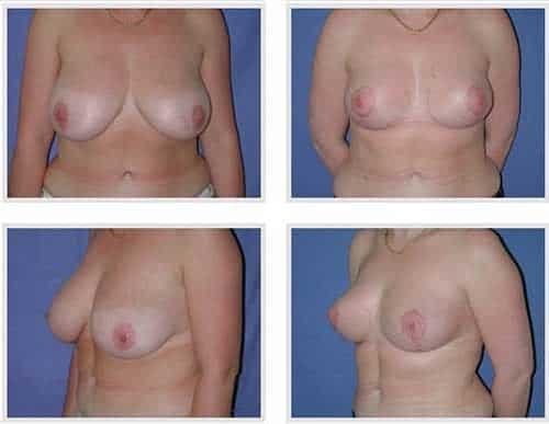 docteur robert zerbib chirurgie plastique chirurgien esthetique paris 16 75116 chirurgie esthetique des seins reduction mammaire pour hypertrophie mammaire plastie mammaire de reduction 6