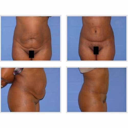 docteur robert zerbib chirurgie plastique chirurgien esthetique paris 16 75116 chirurgie esthetique du corps silhouette abdominoplastie plastie abdominale paris 10
