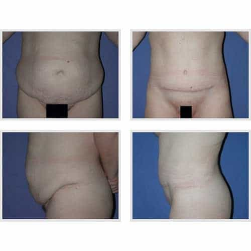 docteur robert zerbib chirurgie plastique chirurgien esthetique paris 16 75116 chirurgie esthetique du corps silhouette abdominoplastie plastie abdominale paris 12