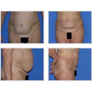 docteur robert zerbib chirurgie plastique chirurgien esthetique paris 16 75116 chirurgie esthetique du corps silhouette abdominoplastie plastie abdominale paris 14