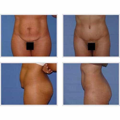 docteur robert zerbib chirurgie plastique chirurgien esthetique paris 16 75116 chirurgie esthetique du corps silhouette abdominoplastie plastie abdominale paris 8