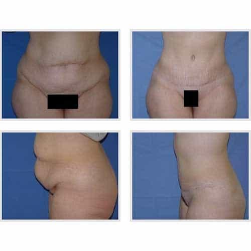 docteur robert zerbib chirurgie plastique chirurgien esthetique paris 16 75116 chirurgie esthetique du corps silhouette abdominoplastie plastie abdominale paris 9