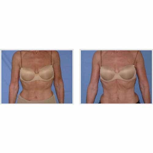 docteur robert zerbib chirurgie plastique chirurgien esthetique paris 16 75116 chirurgie esthetique du corps silhouette lifting des bras paris 16 2