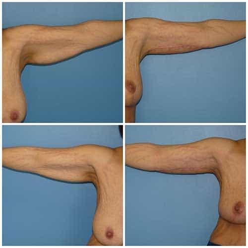 docteur robert zerbib chirurgie plastique chirurgien esthetique paris 16 75116 chirurgie esthetique du corps silhouette lifting des bras paris 16