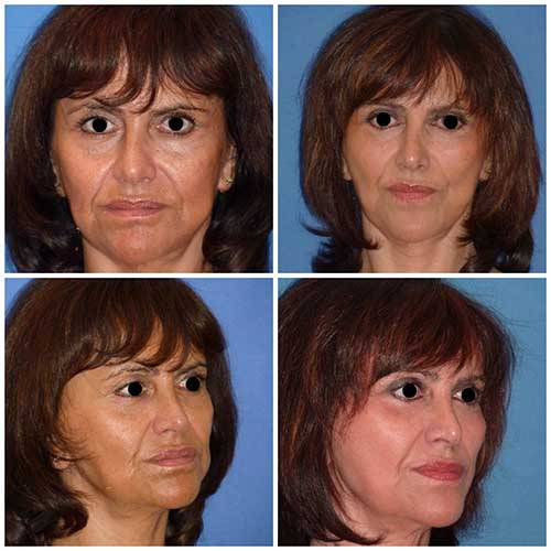 docteur robert zerbib chirurgie plastique chirurgien esthetique paris 16 75116 lifting du visage lifting cervico-facial lifting centro-facial paris 16 3