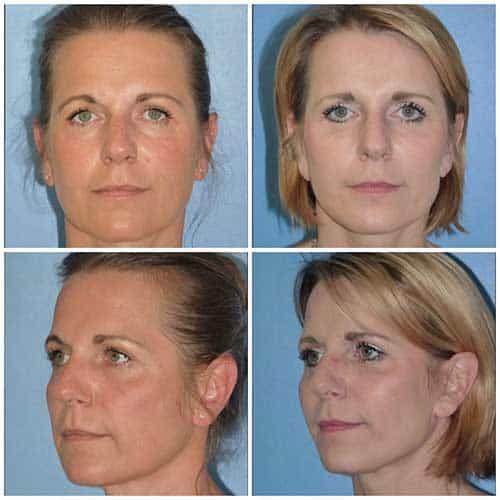 docteur robert zerbib chirurgie plastique chirurgien esthetique paris 16 75116 lifting et lipostructure 1