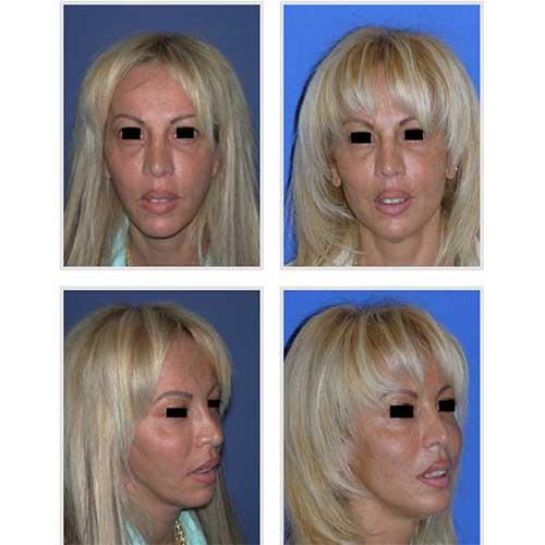 docteur robert zerbib chirurgie plastique chirurgien esthetique paris 16 75116 lipostructure 3