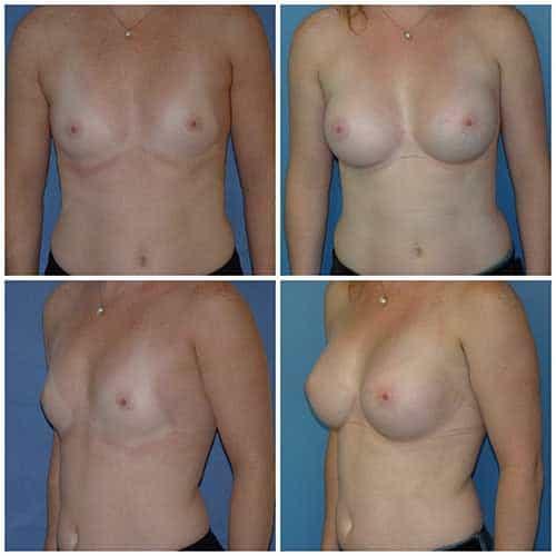 dr robert zerbib chirurgie plastique chirurgien esthetique paris 16 75116 chirurgie esthetique des seins augmentation mammaire par protheses mammaires paris 16 10