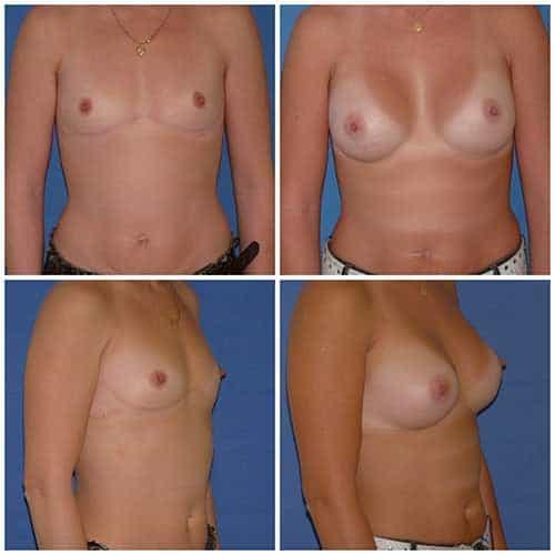 dr robert zerbib chirurgie plastique chirurgien esthetique paris 16 75116 chirurgie esthetique des seins augmentation mammaire par protheses mammaires paris 16 13