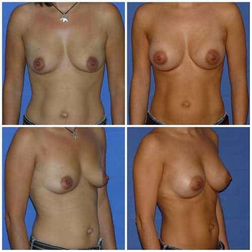 dr robert zerbib chirurgie plastique chirurgien esthetique paris 16 75116 chirurgie esthetique des seins augmentation mammaire par protheses mammaires paris 16 15