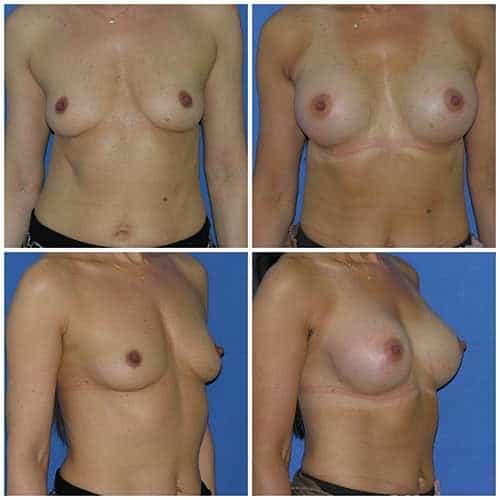 dr robert zerbib chirurgie plastique chirurgien esthetique paris 16 75116 chirurgie esthetique des seins augmentation mammaire par protheses mammaires paris 16 18