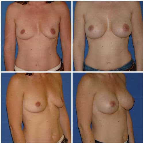 dr robert zerbib chirurgie plastique chirurgien esthetique paris 16 75116 chirurgie esthetique des seins augmentation mammaire par protheses mammaires paris 16 2