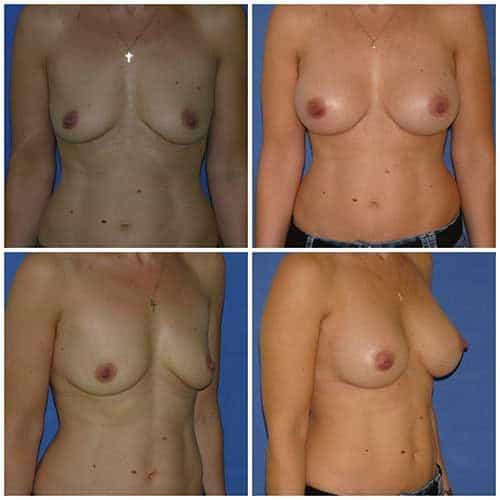 dr robert zerbib chirurgie plastique chirurgien esthetique paris 16 75116 chirurgie esthetique des seins augmentation mammaire par protheses mammaires paris 16 21