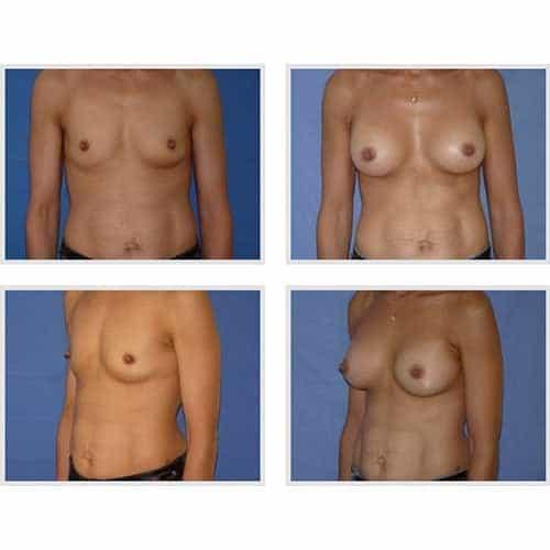 dr robert zerbib chirurgie plastique chirurgien esthetique paris 16 75116 chirurgie esthetique des seins augmentation mammaire par protheses mammaires paris 16 25
