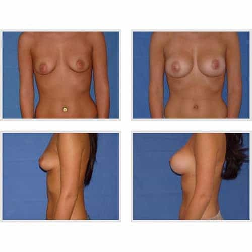 dr robert zerbib chirurgie plastique chirurgien esthetique paris 16 75116 chirurgie esthetique des seins augmentation mammaire par protheses mammaires paris 16 26