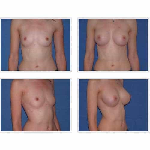 dr robert zerbib chirurgie plastique chirurgien esthetique paris 16 75116 chirurgie esthetique des seins augmentation mammaire par protheses mammaires paris 16 27