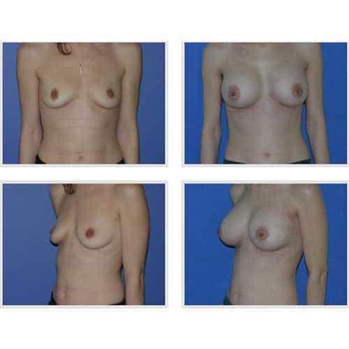 dr robert zerbib chirurgie plastique chirurgien esthetique paris 16 75116 chirurgie esthetique des seins augmentation mammaire par protheses mammaires paris 16 31