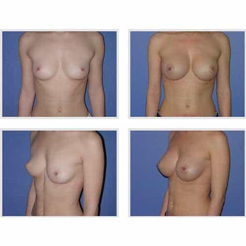 dr robert zerbib chirurgie plastique chirurgien esthetique paris 16 75116 chirurgie esthetique des seins augmentation mammaire par protheses mammaires paris 16 32