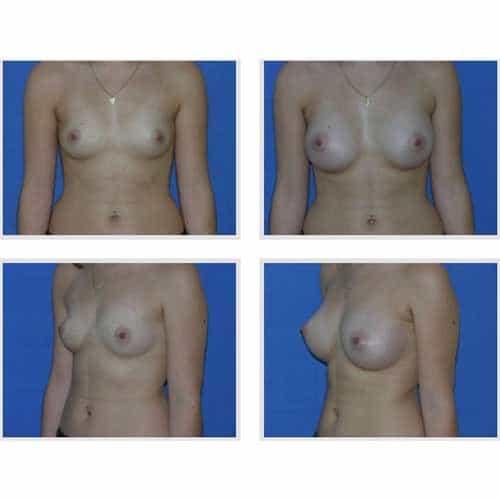 dr robert zerbib chirurgie plastique chirurgien esthetique paris 16 75116 chirurgie esthetique des seins augmentation mammaire par protheses mammaires paris 16 34