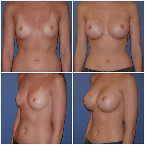 dr robert zerbib chirurgie plastique chirurgien esthetique paris 16 75116 chirurgie esthetique des seins augmentation mammaire par protheses mammaires paris 16 5