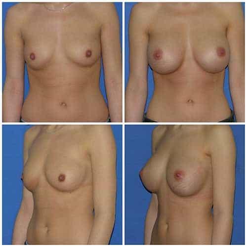 dr robert zerbib chirurgie plastique chirurgien esthetique paris 16 75116 chirurgie esthetique des seins augmentation mammaire par protheses mammaires paris 16 7