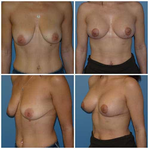 dr robert zerbib chirurgie plastique chirurgien esthetique paris 16 75116 chirurgie esthetique des seins lifting mammaire lifting des seins ptose mammaire affaissement des seins seins qui tombent 1