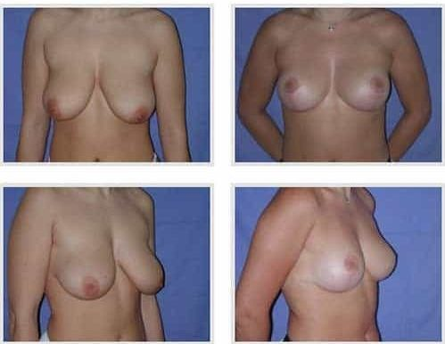 dr robert zerbib chirurgie plastique chirurgien esthetique paris 16 75116 chirurgie esthetique des seins lifting mammaire lifting des seins ptose mammaire affaissement des seins seins qui tombent 12