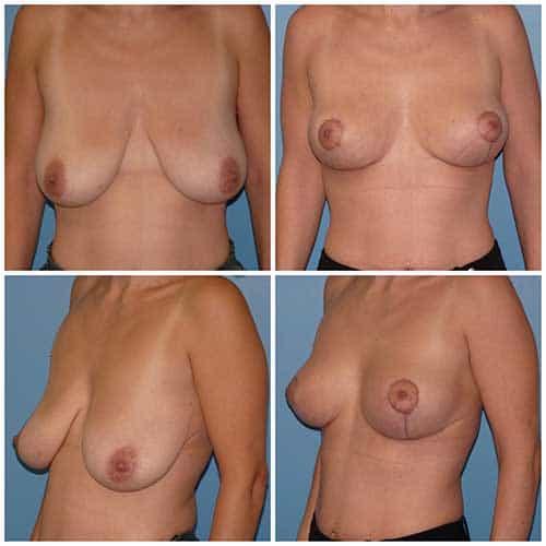 dr robert zerbib chirurgie plastique chirurgien esthetique paris 16 75116 chirurgie esthetique des seins lifting mammaire lifting des seins ptose mammaire affaissement des seins seins qui tombent 2