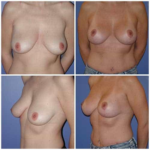 dr robert zerbib chirurgie plastique chirurgien esthetique paris 16 75116 chirurgie esthetique des seins lifting mammaire lifting des seins ptose mammaire affaissement des seins seins qui tombent 3