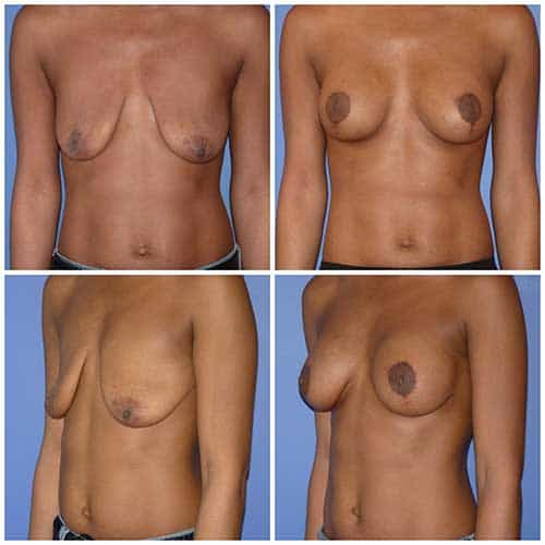 dr robert zerbib chirurgie plastique chirurgien esthetique paris 16 75116 chirurgie esthetique des seins lifting mammaire lifting des seins ptose mammaire affaissement des seins seins qui tombent 4