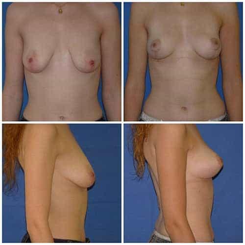 dr robert zerbib chirurgie plastique chirurgien esthetique paris 16 75116 chirurgie esthetique des seins lifting mammaire lifting des seins ptose mammaire affaissement des seins seins qui tombent 5